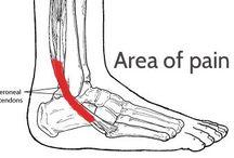 runners pain