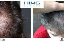 Hajbeültetés Hajbeültetés 425590233519304118