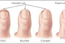 Conditions - Ingrown Toenails / All About Ingrown Toenails / by Foot & Ankle Center of Washington