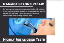 Oral Surgery Edmonton: 4 Signs You Need A Tooth Extraction
