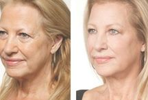 Holistic Facelift Accomplished Using Face Acupressure Gymnastics / Face Massaging Aerobics For Removing Lines And Folds And Reinstating Youth