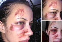 Clipe de coşmar pentru o femeie din ... ACTIVENEWS.RO O tânără din Tulcea a decis să publice poze cu ea desfigurată pe Facebook, după ce Poliţia a ignorat...