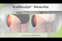 truSculpt your fat away