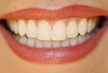 Use turmeric for white teeth