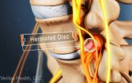 Cervical Disc Disease