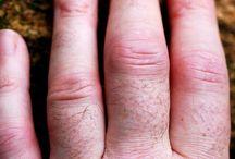 talk Arthritis