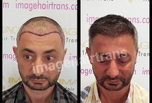 saç ekimi imagehairtrans / zamana inat genç kalmak isteyenler