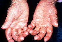 Ichthyosis Treatment / Ichthyosis is a skin condition that causes dry, dead skin cells to accumulate in patches on the surface of your skin. Osmeton can help you get rid of Ichthyosis a disorder demonstrated by dry, congealed, flaking or chipped skin.