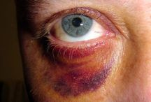 Eyes bruises