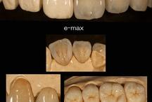 Dental emax