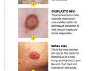 Sykepleie fag