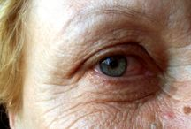 Wrinkles around eyes