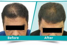 Hair Transplant in Ludhiana , Chandigarh- Snohospital.com / Dr Omi Jindal is a renowned name internationally in the field of Hair transplant, cosmetic procedures, aesthetic treatments and skin-care solutions.