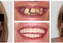 Teeth in a Day / This procedure has been adopted in our clinic thanks to a high degree of skill, state of the art equipment and top quality materials.