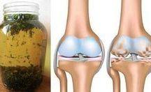 dolores d rodillas