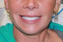 Golpa G4-Implant Solution | August 2014 Patients of the Week / http://4implantsolution.com The Golpa (G4)-Implant Solution provides a permanent, titanium re-enforced Bridge for the entire upper and/or lower set of teeth (arch), in just 1 visit.