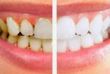 Интересные рецепты зубы