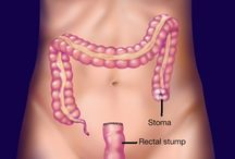 Sigmoid colectomy