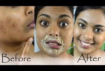 remove facial pigmentation.