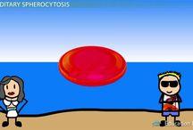 spherocytosis