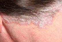 doenca de pele