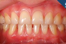 Dental Facts and Tips / Funny, interesting and useful dental facts and tips. Pinned by the Enchanting Dentistry team www.954dentist.com