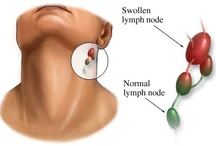 Swollen Lymph Nodes Glands Disease