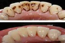 Lavado dientes