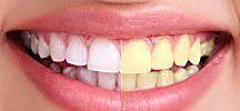 diented