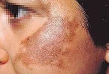 tratamento de rosto