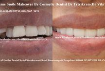 Extreme Smile Makeovers in Bangalore,India. / Smile makeovers in Bangalore by Expert Cosmetic Dentist Dr Trivikram(Dr Vikram).Any adult having teeth with gaps, crooked teeth, over sized, small teeth, dark teeth, bad crowns, protruding  or  fractured teeth is a candidate for smile makeover without braces. PH +91-0- 98450 85230.080-26673439.