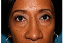 Blepharoplasty / Before and After Patient Photos