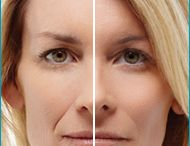 Before & After / by Dr. David Azouz | Cosmetic and Plastic Surgeon