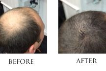 Hairbond Dimensions / Hair building fibres by Hairbond Dimensions