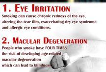 Eye Infographics