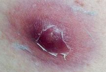 First aid splinter / How to remove painlessly