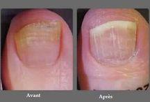 ongles des pieds sains