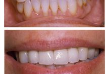 Before And After Dental Treatments