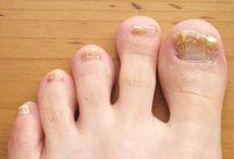Unghii Picior