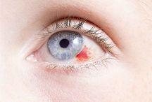 GÖZ HASTALIKLARI / Göz Hastalıkları Miyop Hipermetrop Şaşılık Uzağı ve Yakını Görememe, Katarakt ile Şaşılık, Tavuk karası hastalığı, Glokom göz tansiyonu belirtileri, Gözde Kırma (Refraksiyon), Göz enfeksiyonu, Kırmızı göz ve kuru göz hastalıkları, Göz dibi tedavisi, Miyop Hipermetrop ve astigmat tedavisi ile Tüm Göz Hastalıkları Teşhis Tedavi ile Belirtileri ve daha fazlası Göz sağlığı ve Göz Hastalıkları Kategorilerimizde mevcuttur.