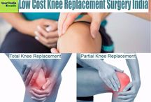 Knee Replacement Surgery Benefits India