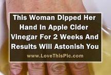 apple cider vinegar hands