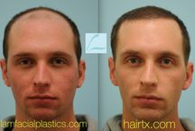 Male Hair Transplant Results / These are Before and after images for men who had hair transplant