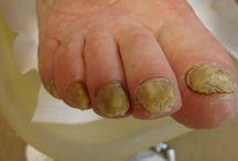 Kalk nagels