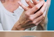 artrosis artritis dolor de espalda