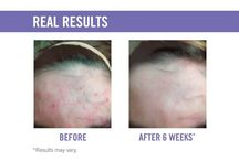R+F - Products for everyone / Redefine life lines, Reverse discoloration, Soothe sore and irritated skin, Unblemish acne