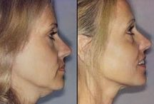 Facial Aerobics Routines / The Chinese Acupressure Facelift Meets Facial Yoga Exercises