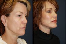 Dr Freeman Makeovers / Before and After Photos of Clients
