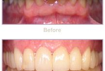 Full Mouth Makeover Gallery / Full Mouth Makeover Photo Gallery