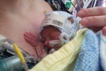Motherhood // Hugo / My baby boy Hugo, who died aged 35 days. Raising awareness of HELLP syndrome, birth trauma, premature babies, and baby loss.